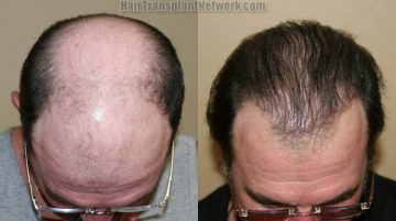 hair-transplant-surgery-photos-top-168865